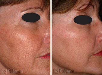 Před a po vyšetření laserem