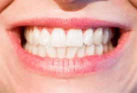 Poškozené dásně jsou vstupní branou pro infekci. Zastavte ji včas