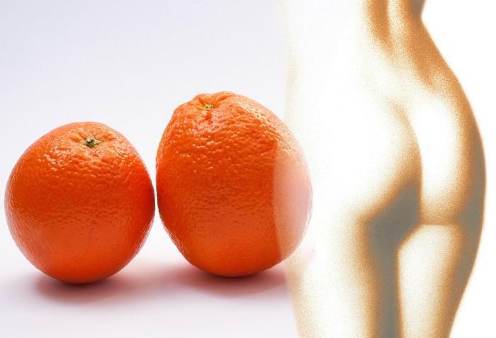Také bojujete s pomerančovou kůži?