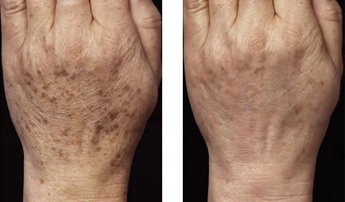 Před a po ošetření laserem