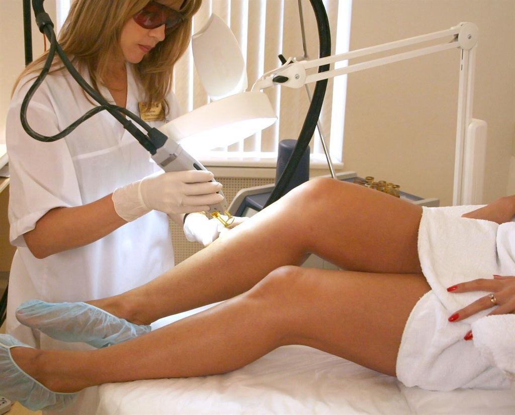 Laserová epilace nohou