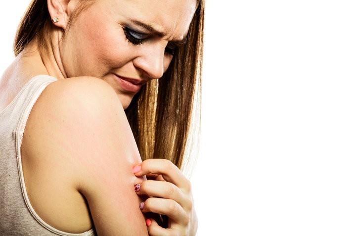 Výhody přípravku na vysušenou pokožku či atopický ekzém Epaderm Ointment